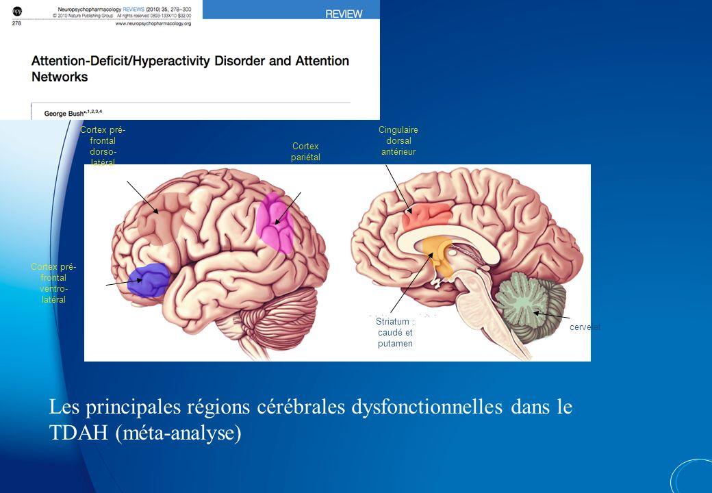 Cortex pré-frontal dorso-latéral