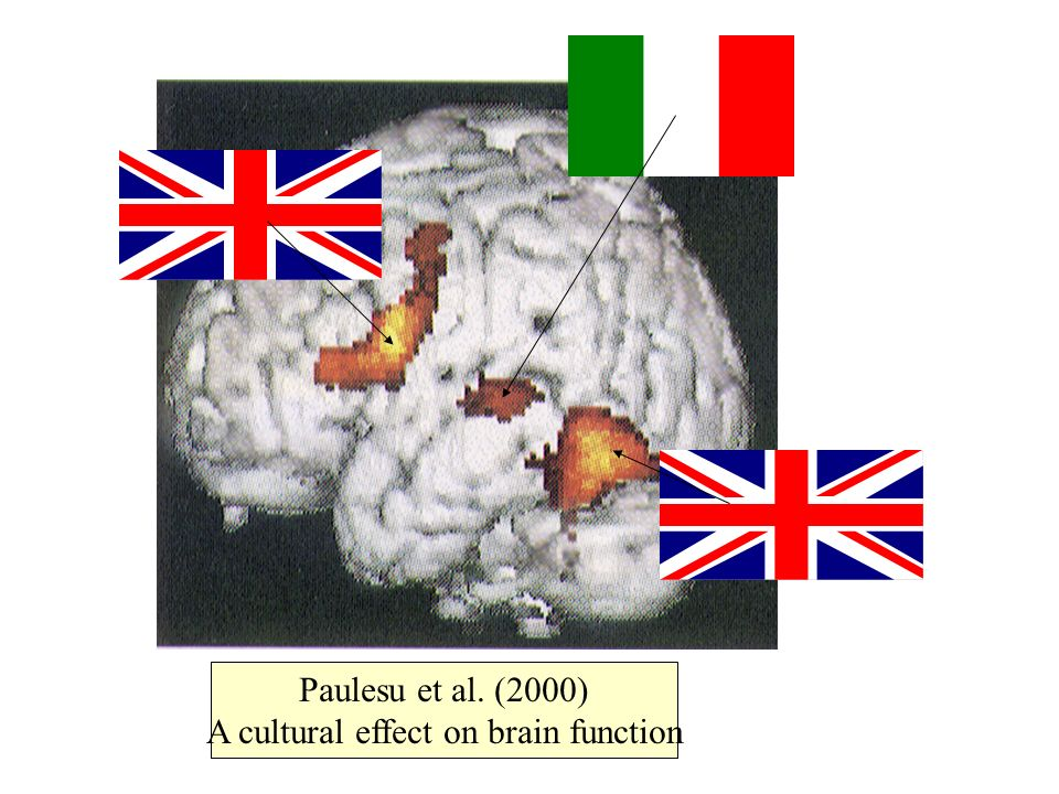 A cultural effect on brain function