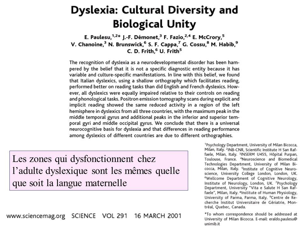 Les zones qui dysfonctionnent chez l'adulte dyslexique sont les mêmes quelle que soit la langue maternelle