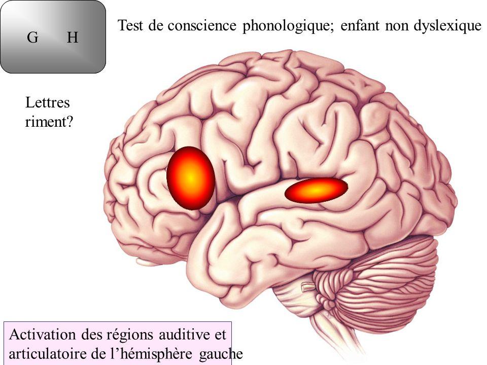 G H T D. Test de conscience phonologique; enfant non dyslexique. Lettres. riment Activation des régions auditive et.