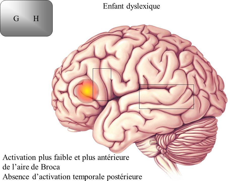 G H Enfant dyslexique. Activation plus faible et plus antérieure.