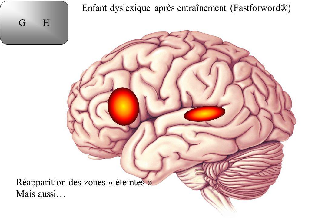 G H Enfant dyslexique après entraînement (Fastforword®) Réapparition des zones « éteintes » Mais aussi…