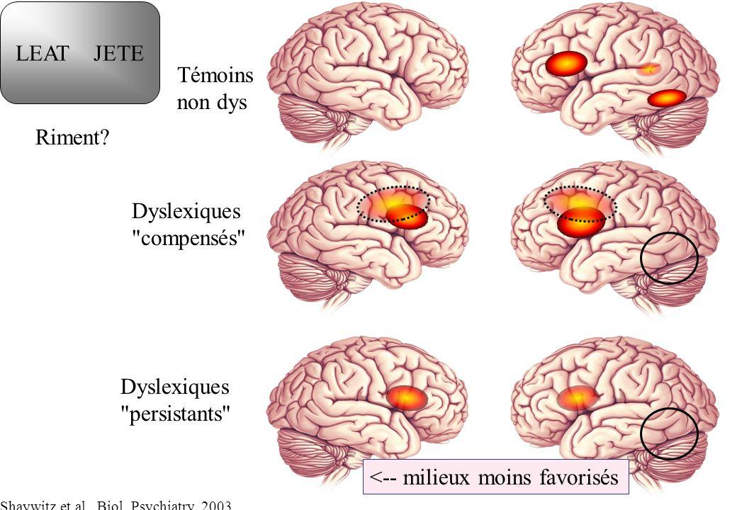 Dyslexiques compensés