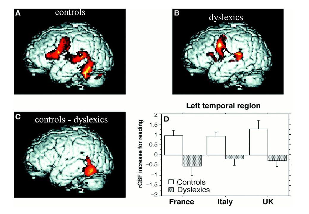 controls dyslexics controls - dyslexics