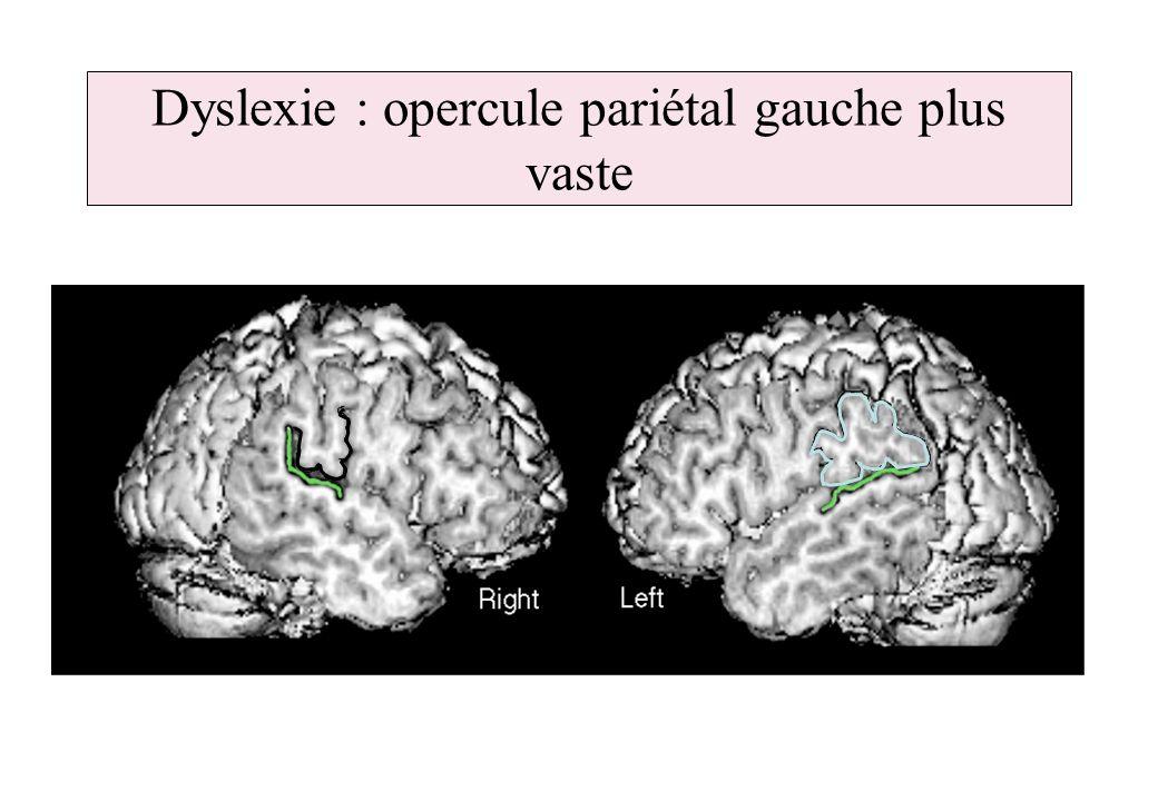 Dyslexie : opercule pariétal gauche plus vaste