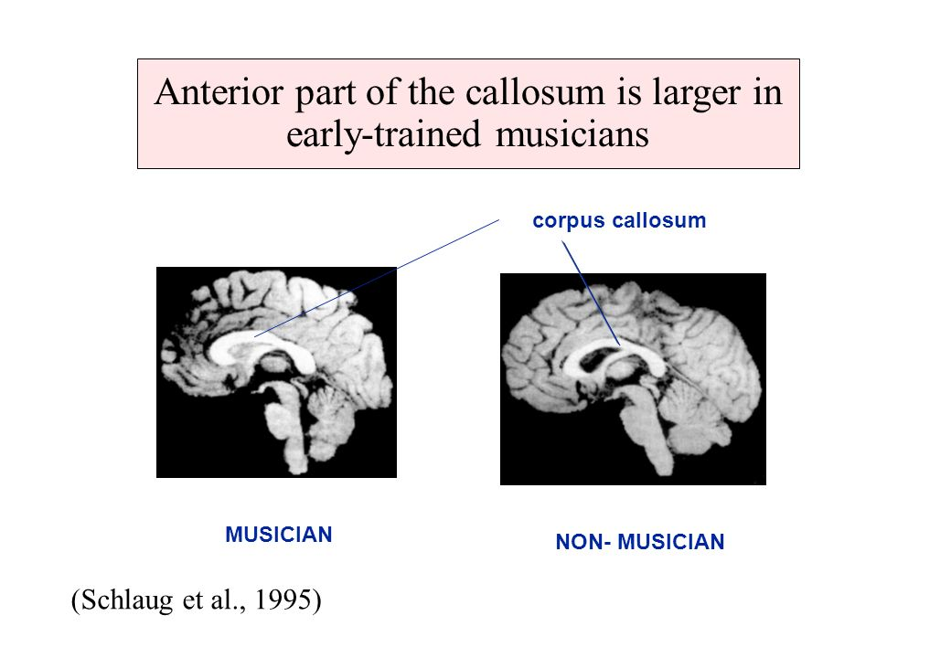 Anterior part of the callosum is larger in early-trained musicians