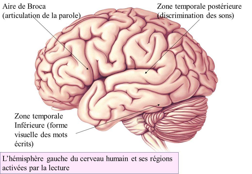 Aire de Broca (articulation de la parole) Zone temporale postérieure. (discrimination des sons) Zone temporale.