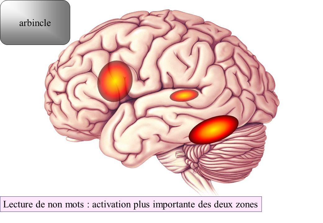 arbincle Lecture de non mots : activation plus importante des deux zones