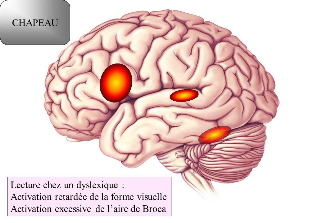 CHAPEAU Lecture chez un dyslexique : Activation retardée de la forme visuelle.