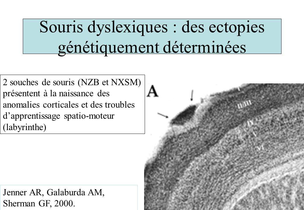 Souris dyslexiques : des ectopies génétiquement déterminées