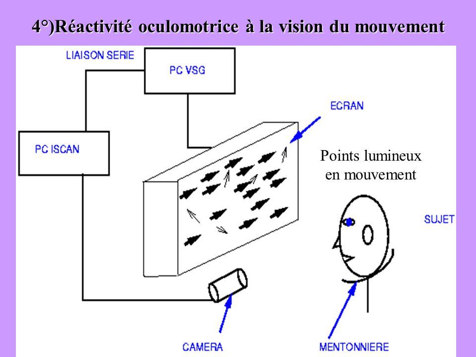 4°)Réactivité oculomotrice à la vision du mouvement