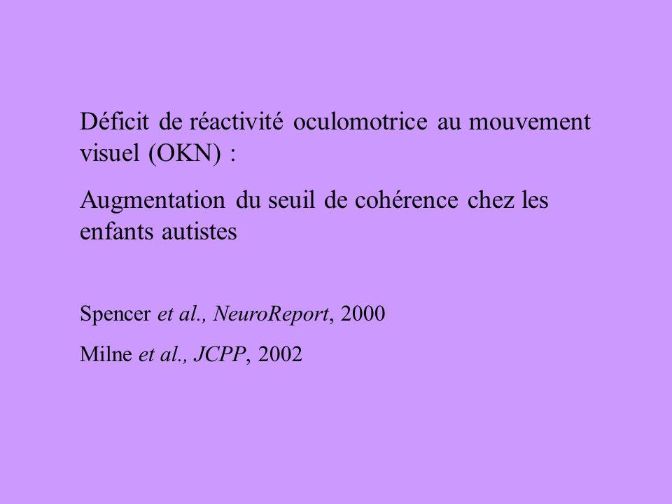Déficit de réactivité oculomotrice au mouvement visuel (OKN) :