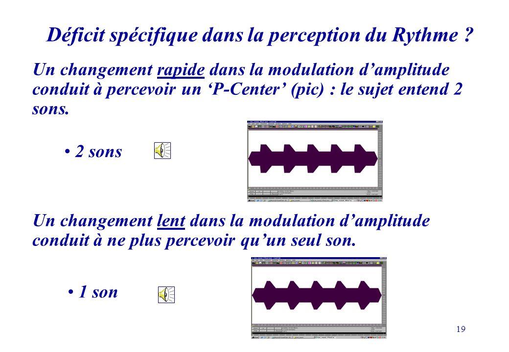 Déficit spécifique dans la perception du Rythme