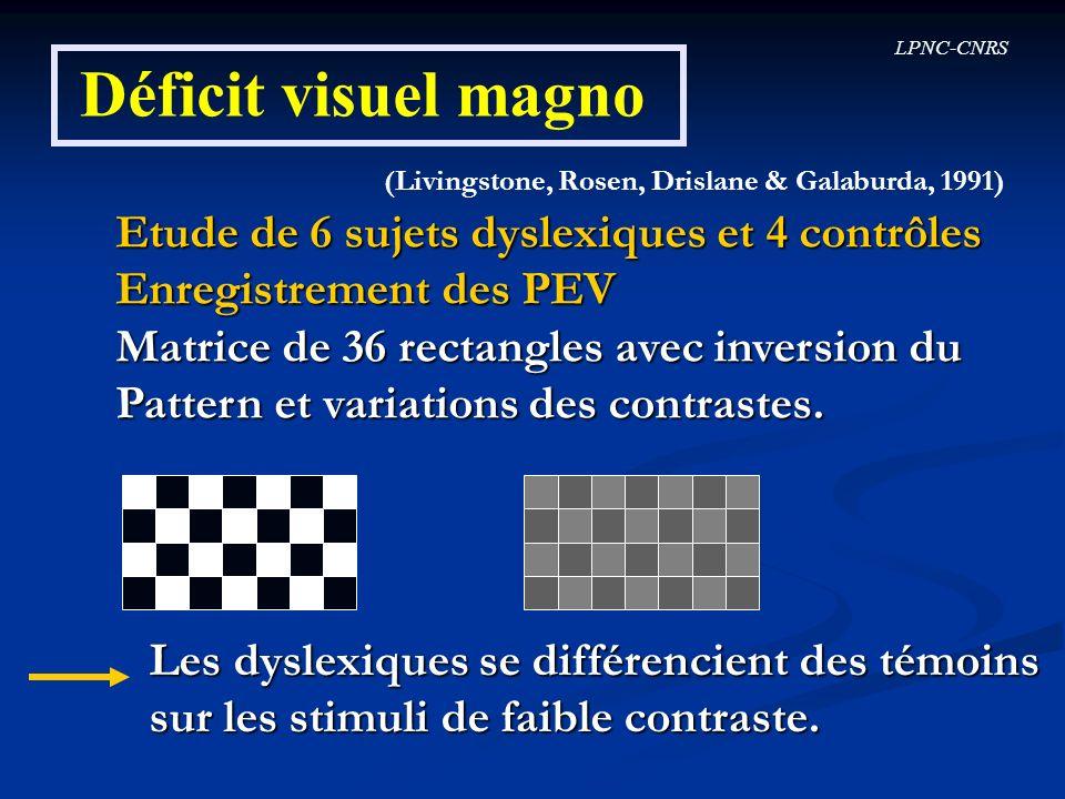 Déficit visuel magno Etude de 6 sujets dyslexiques et 4 contrôles