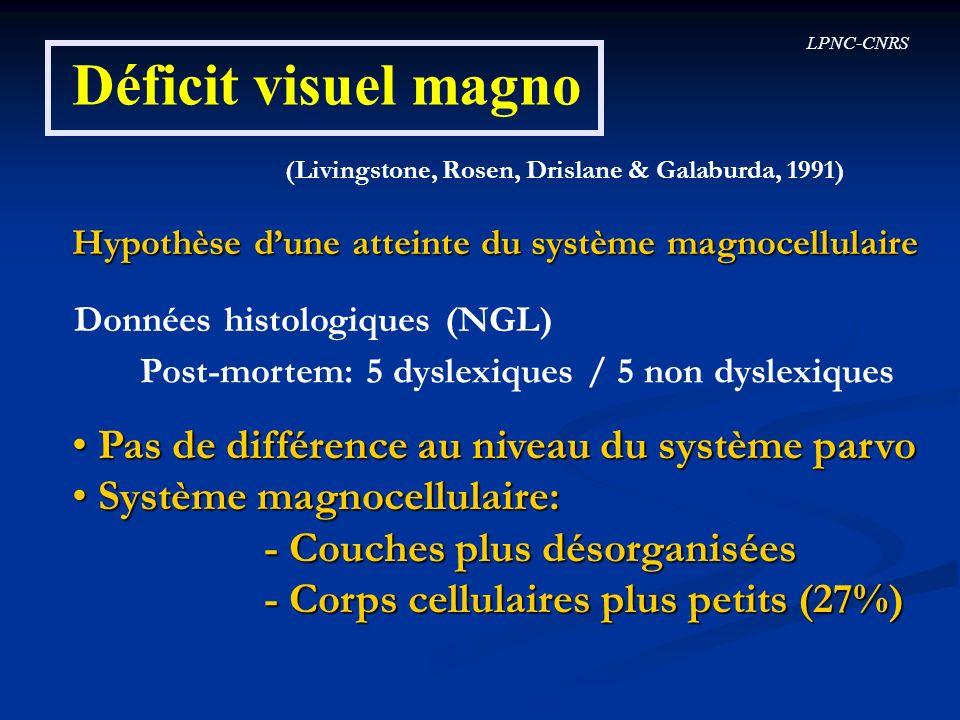 Déficit visuel magno Pas de différence au niveau du système parvo