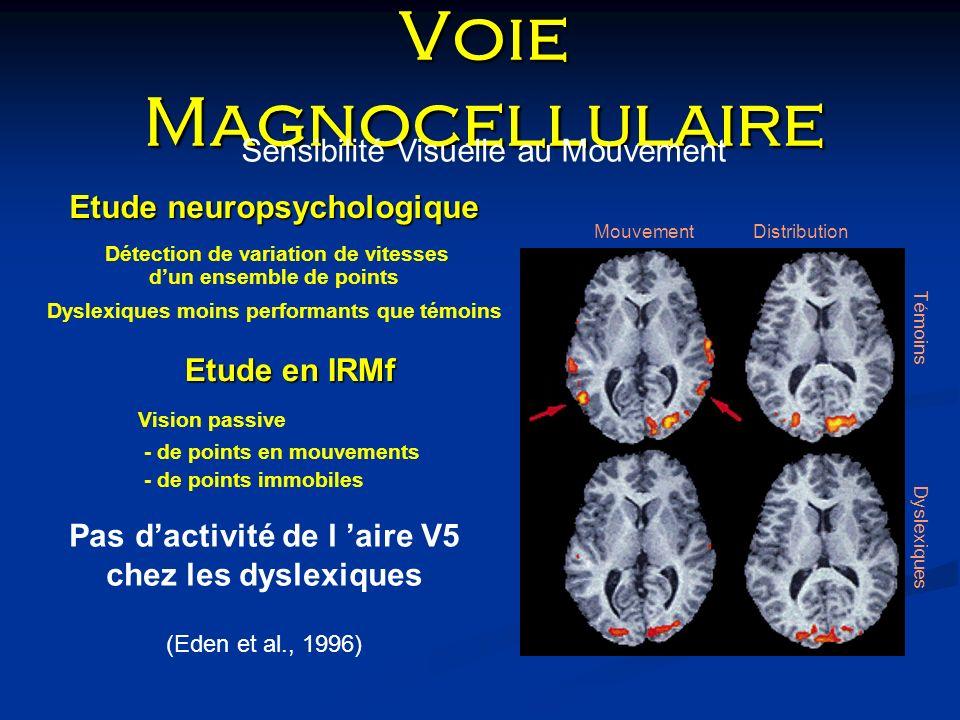 Voie Magnocellulaire Sensibilité Visuelle au Mouvement