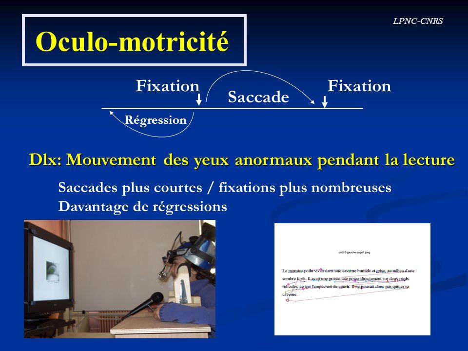 Oculo-motricité Fixation Fixation Saccade