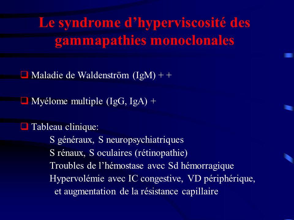 Le syndrome d'hyperviscosité des gammapathies monoclonales