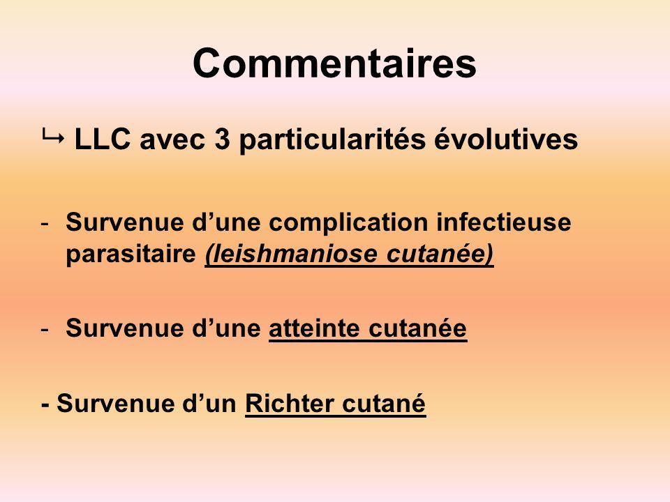 Commentaires LLC avec 3 particularités évolutives