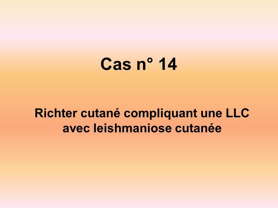 Richter cutané compliquant une LLC avec leishmaniose cutanée