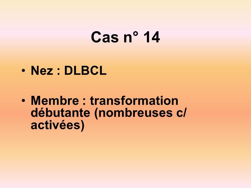Cas n° 14 Nez : DLBCL Membre : transformation débutante (nombreuses c/ activées)