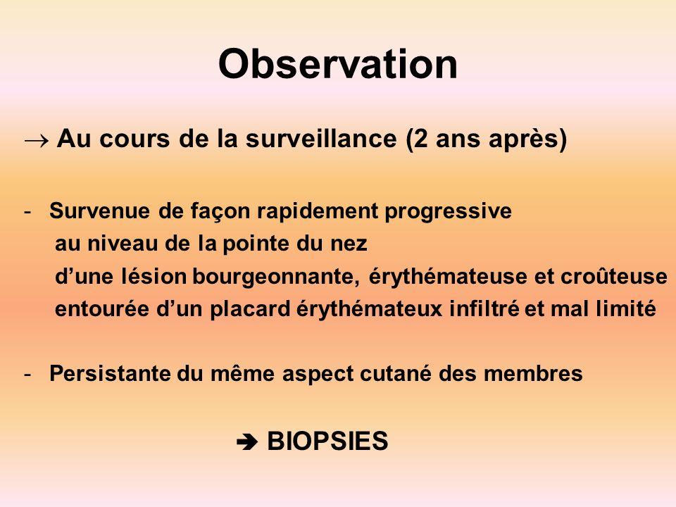 Observation Au cours de la surveillance (2 ans après)