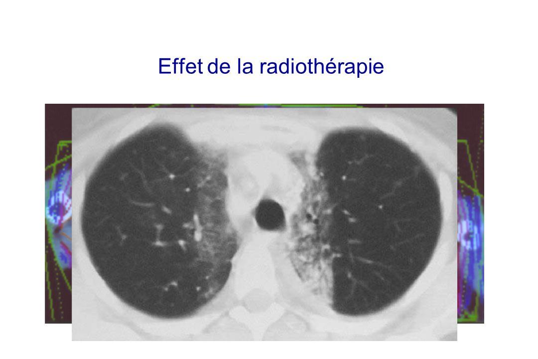 Effet de la radiothérapie