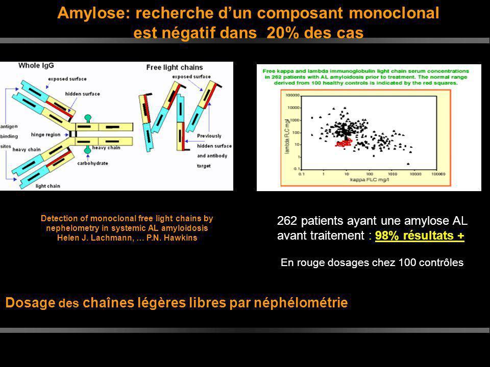 Dosage des chaînes légères libres par néphélométrie
