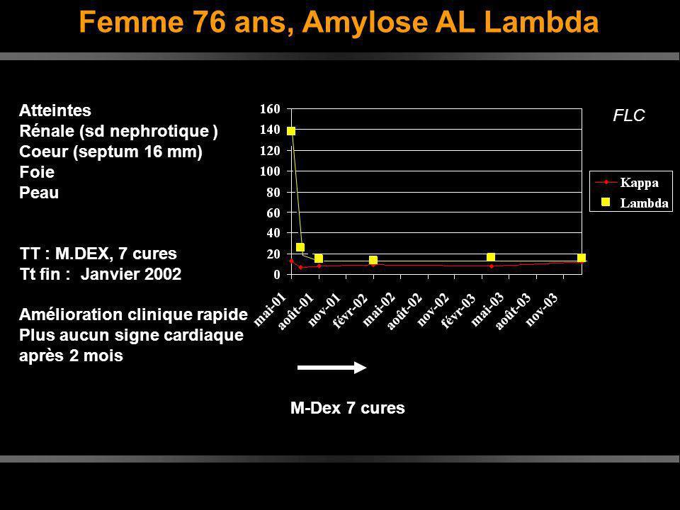 Femme 76 ans, Amylose AL Lambda