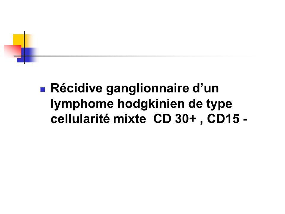 Récidive ganglionnaire d'un lymphome hodgkinien de type cellularité mixte CD 30+ , CD15 -