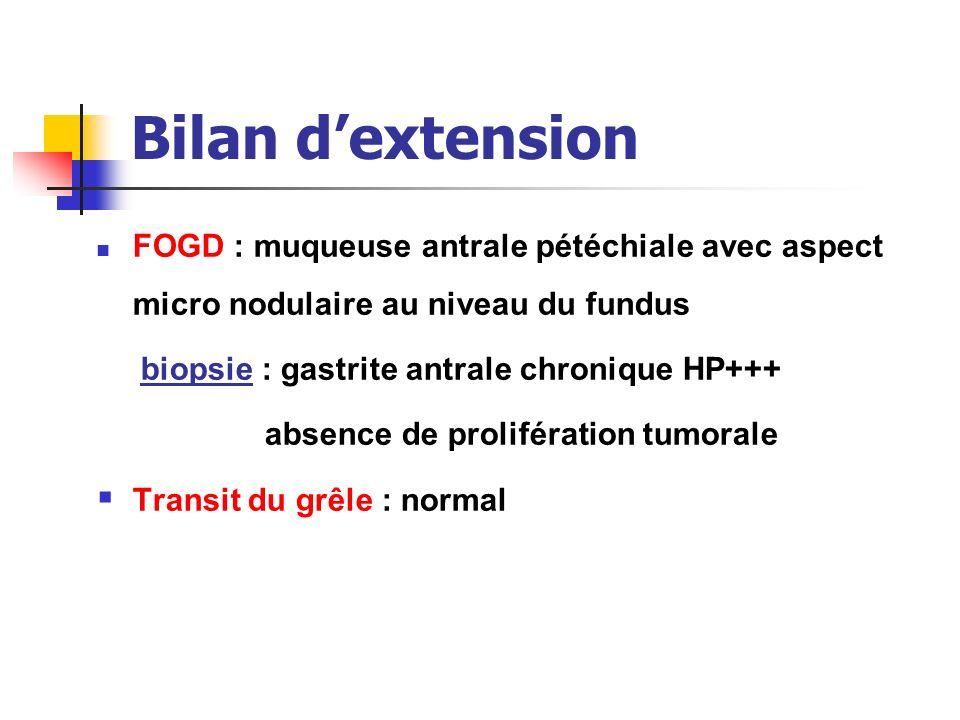 Bilan d'extension FOGD : muqueuse antrale pétéchiale avec aspect micro nodulaire au niveau du fundus.
