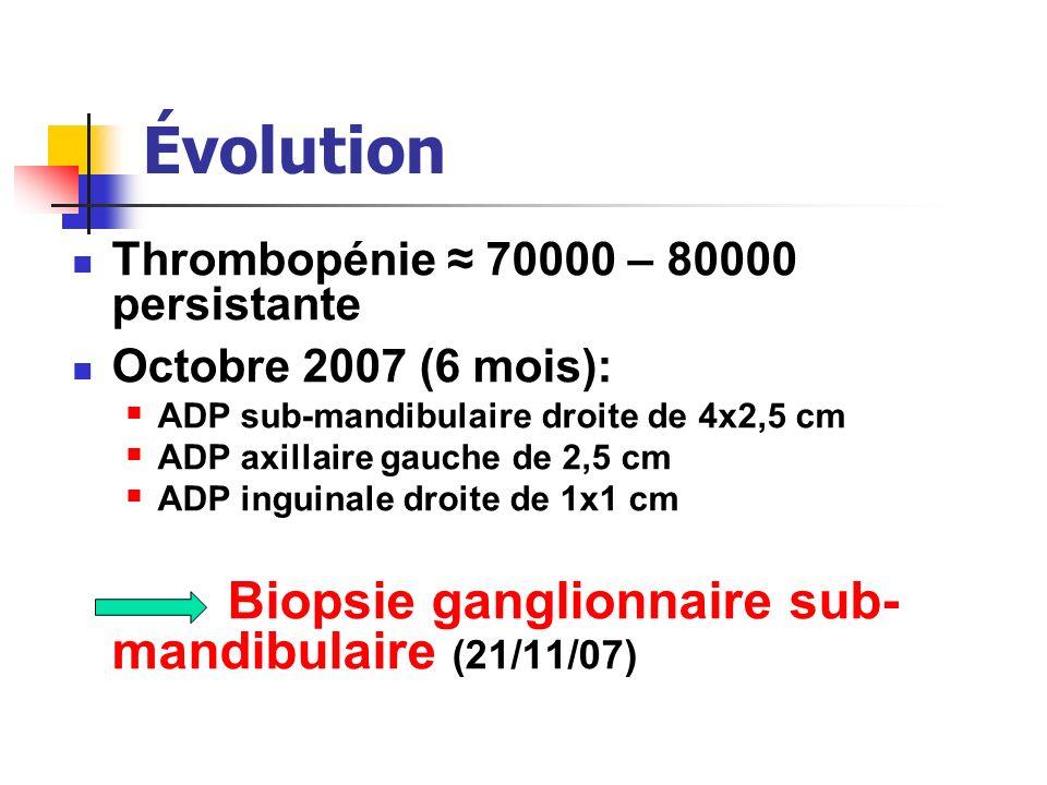 Évolution Thrombopénie ≈ 70000 – 80000 persistante