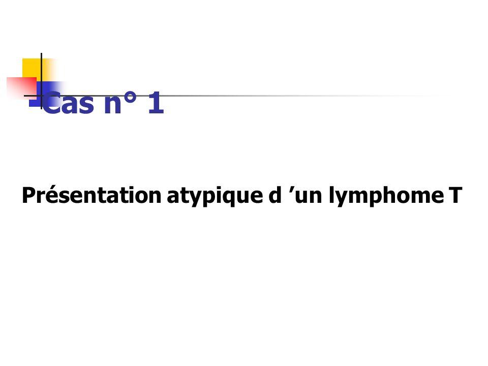 Présentation atypique d 'un lymphome T