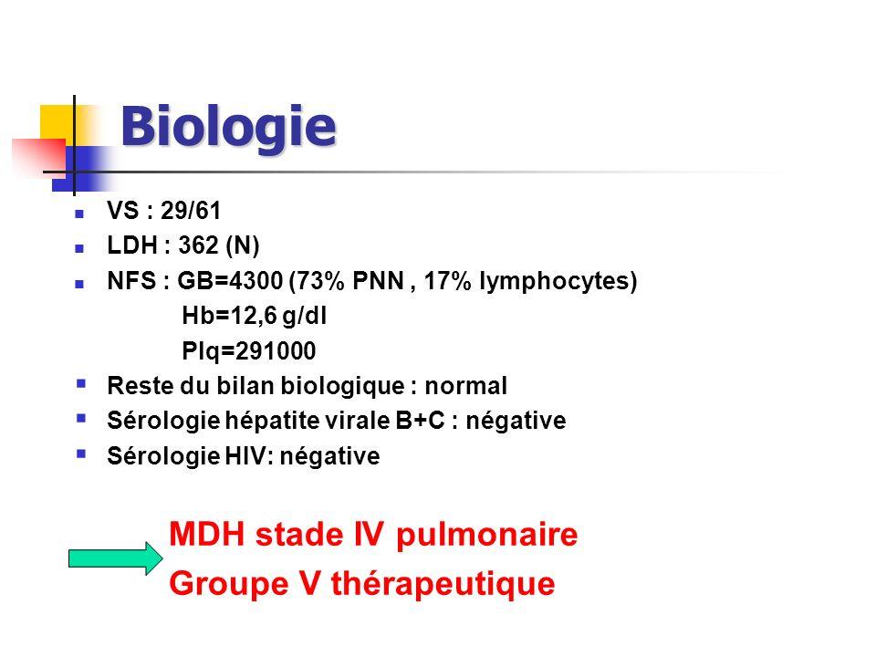 Biologie VS : 29/61. LDH : 362 (N) NFS : GB=4300 (73% PNN , 17% lymphocytes) Hb=12,6 g/dl. Plq=291000.
