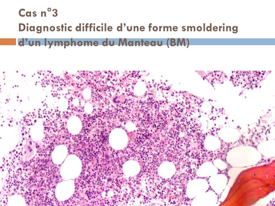 Cas n°3 Diagnostic difficile d'une forme smoldering d'un lymphome du Manteau (BM)