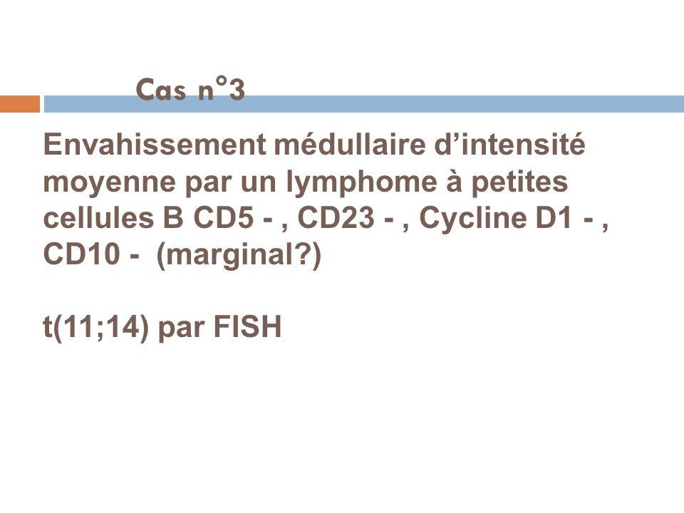 Cas n°3 Envahissement médullaire d'intensité moyenne par un lymphome à petites cellules B CD5 - , CD23 - , Cycline D1 - , CD10 - (marginal )