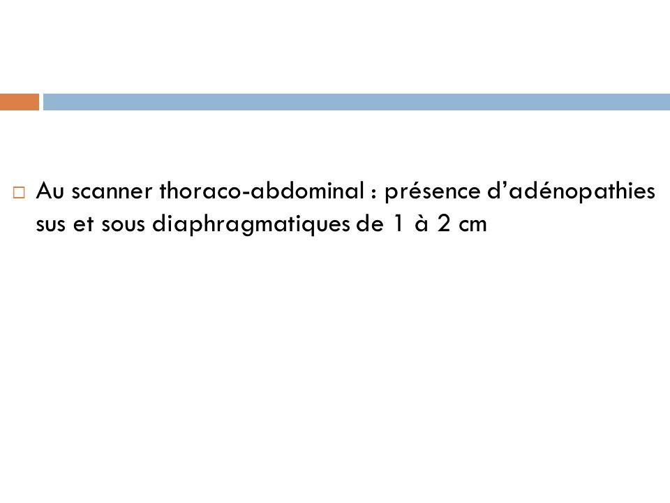 Au scanner thoraco-abdominal : présence d'adénopathies sus et sous diaphragmatiques de 1 à 2 cm