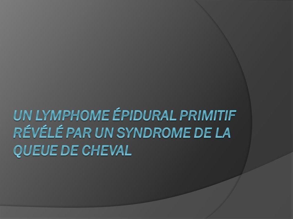 Un lymphome épidural primitif révélé par un syndrome de la queue de cheval