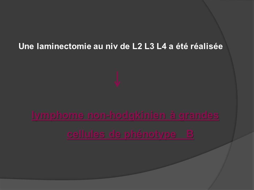 lymphome non hodgkinien a grandes cellules