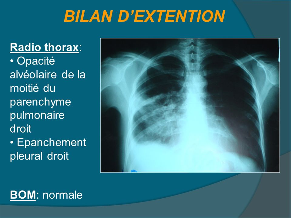 BILAN D'EXTENTION Radio thorax: