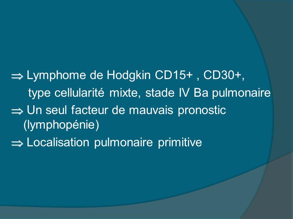  Lymphome de Hodgkin CD15+ , CD30+, type cellularité mixte, stade IV Ba pulmonaire  Un seul facteur de mauvais pronostic (lymphopénie)  Localisation pulmonaire primitive