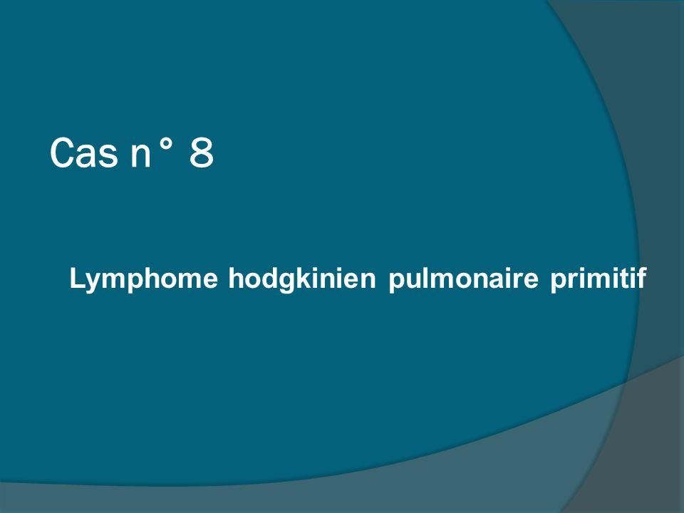 Lymphome hodgkinien pulmonaire primitif