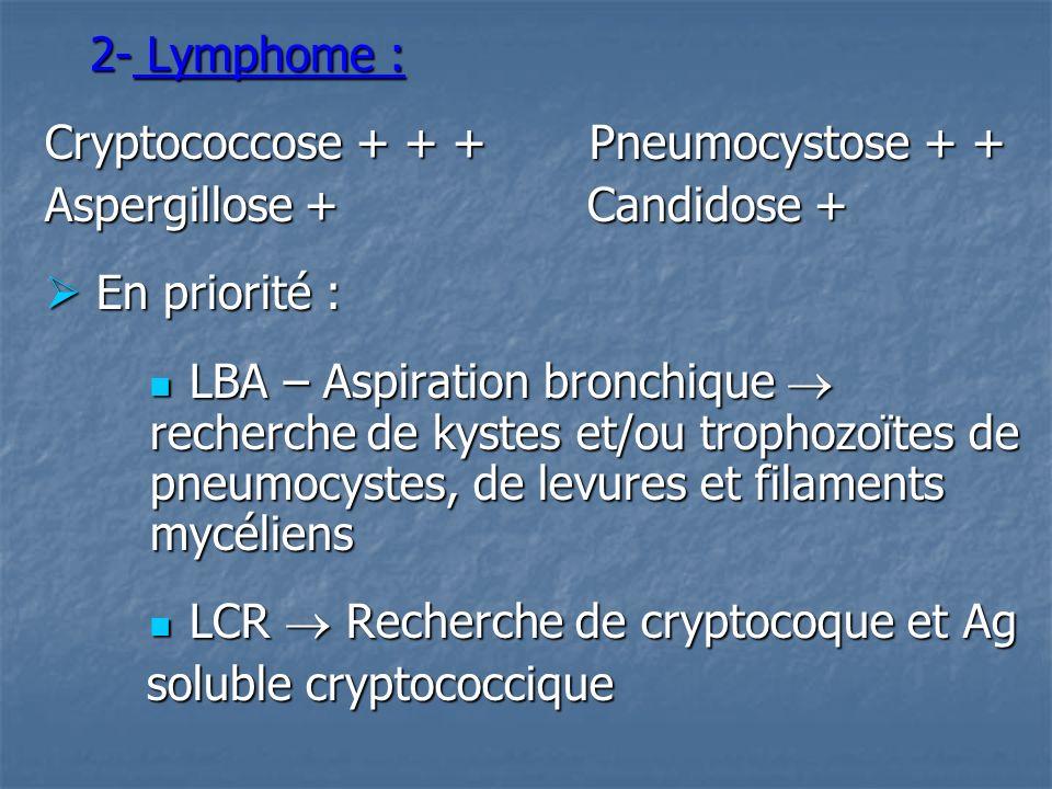 2- Lymphome : Cryptococcose + + + Pneumocystose + + Aspergillose + Candidose +