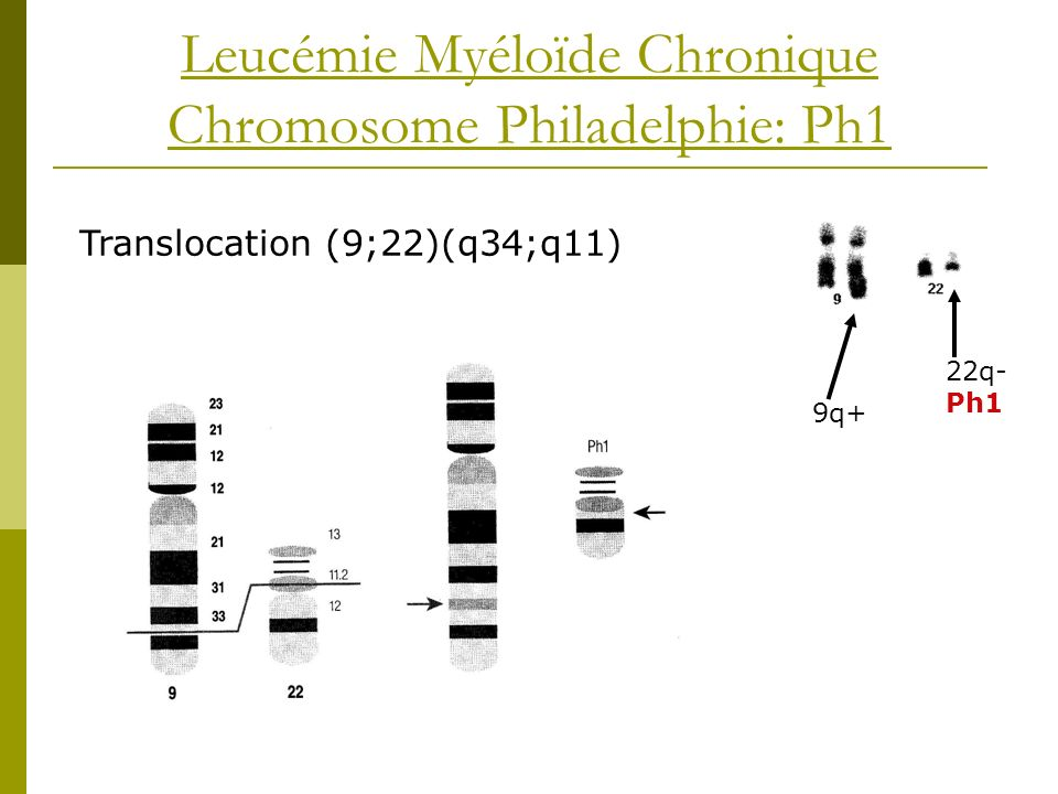 Leucémie Myéloïde Chronique Chromosome Philadelphie: Ph1