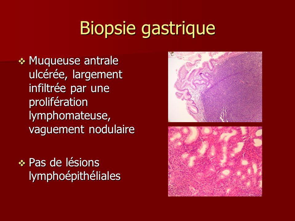 Biopsie gastrique Muqueuse antrale ulcérée, largement infiltrée par une prolifération lymphomateuse, vaguement nodulaire.