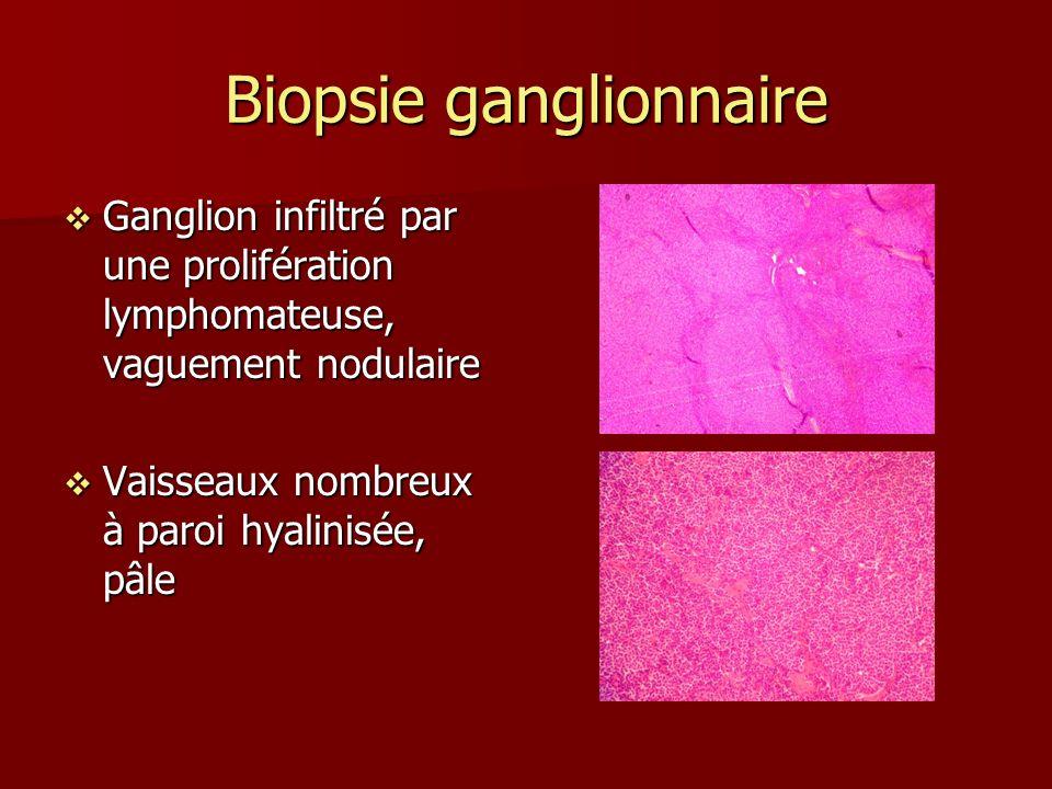 Biopsie ganglionnaire