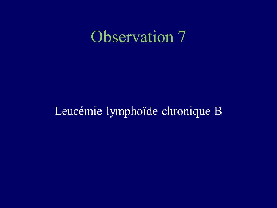Leucémie lymphoïde chronique B