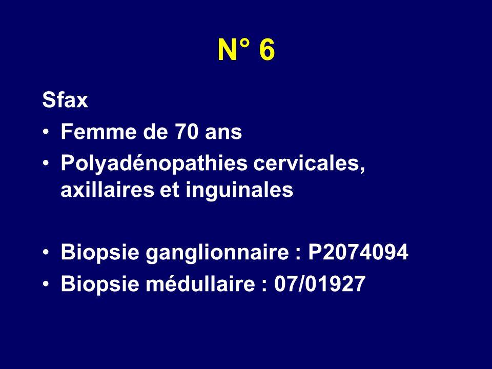 N° 6 Sfax. Femme de 70 ans. Polyadénopathies cervicales, axillaires et inguinales. Biopsie ganglionnaire : P2074094.