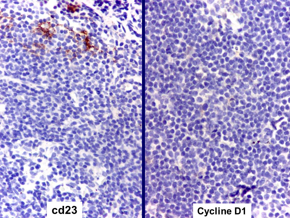 cd23 Cycline D1