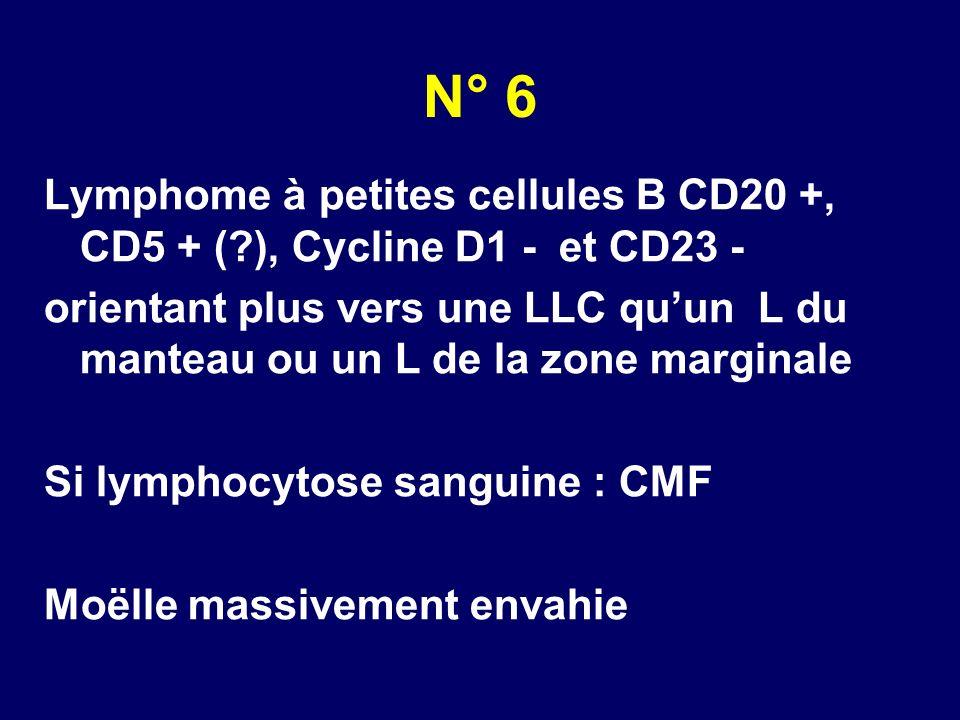 N° 6 Lymphome à petites cellules B CD20 +, CD5 + ( ), Cycline D1 - et CD23 -